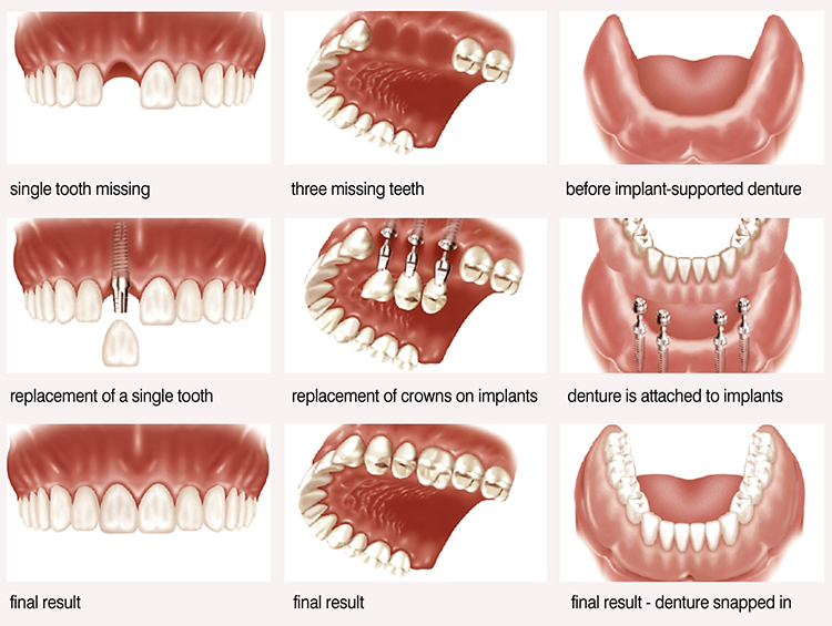 tooth implant process Edmonds and Shoreline