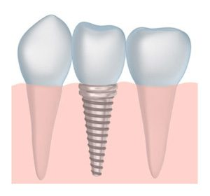 dental implant specialist Mountlake Terrace